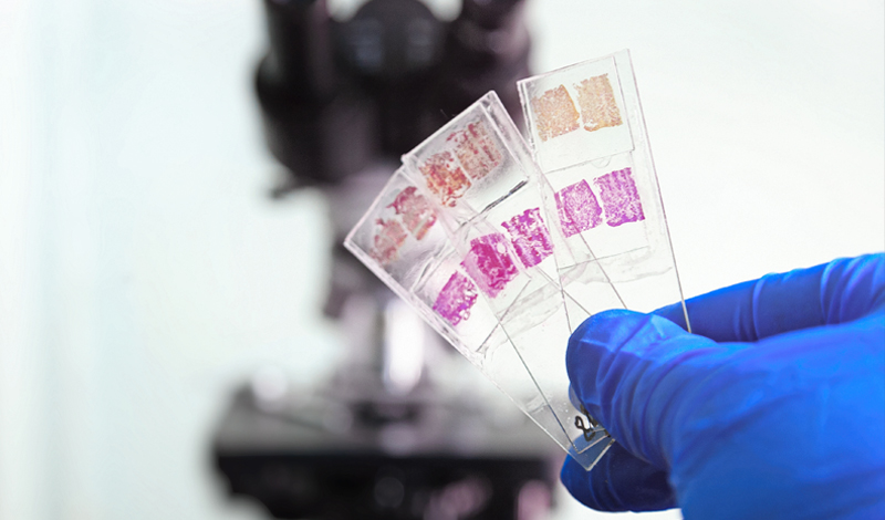 Gloved hand holding glass slides with a microscope in the background.